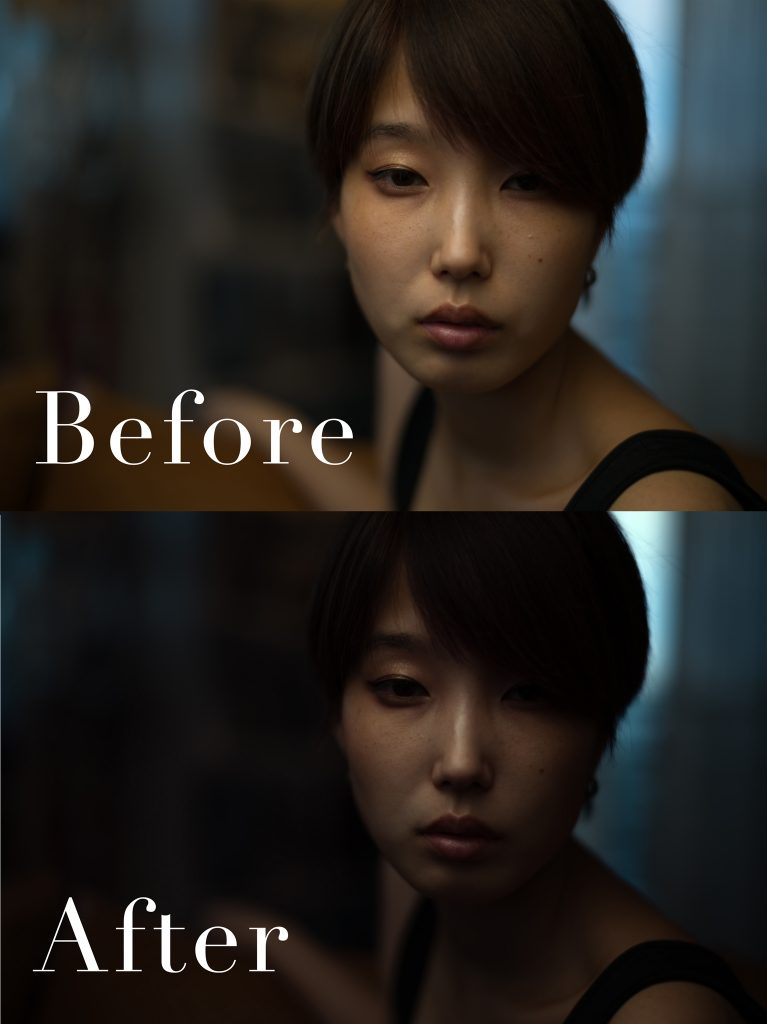 Before-After_かりんさん
